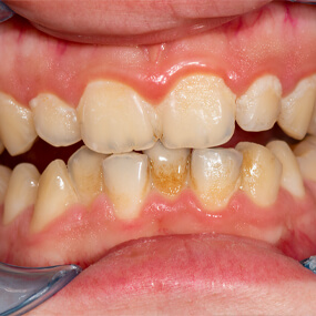 Unchecked oral bacteria can lead to bad breath, tooth decay, gum disease and more.