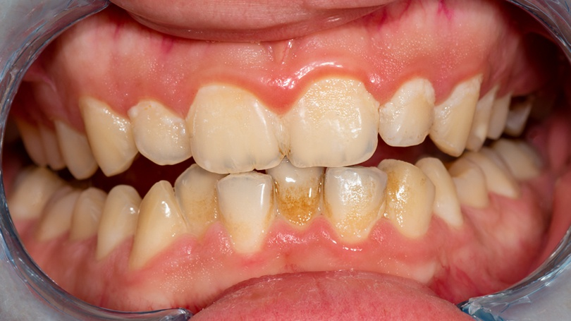 Uncontrolled bad bacteria in the mouth can lead to a wide range of oral health issues.