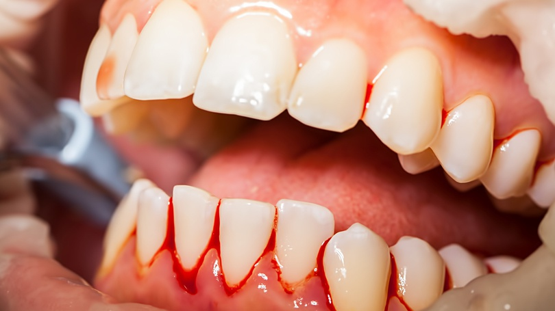 Explore what causes your gums to bleed, how you can avoid it, and what you should do about it.