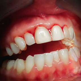 How to avoid periodontal disease and how to manage it.