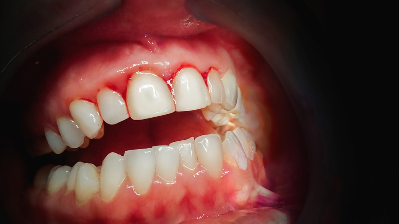 Learn what causes periodontal disease, the symptoms associated with it and your treatment options, including reversing or managing the condition.
