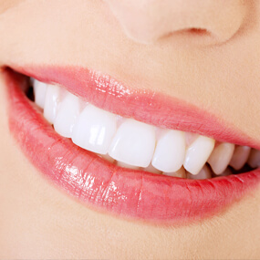 A smile makeover is an individualized plan.