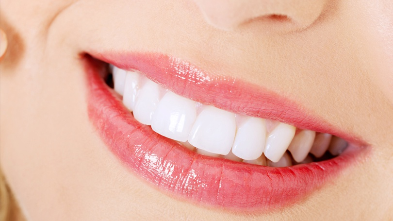 Perfect your smile with a smile makeover that is tailored to you and synergies the various treatments you choose.