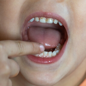 Cavities are common in America, but there are ways to avoid ever having one.