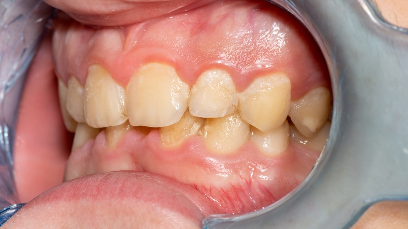 The formation of dental plaque is a natural and expected occurrence, and there are steps you can take to eliminate almost all of it before ever visiting your dentist.