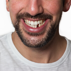 What to do if a tooth has been knocked out or otherwise damaged.