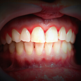 Gingivitis will eventually lead to symptoms, including bleeding and receding gums.
