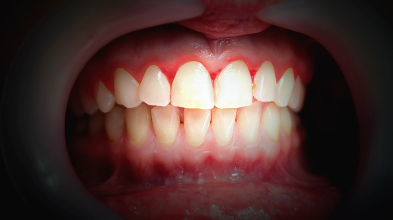 Gingivitis—the earliest stage of gum disease—will manifest warning signs, including gums that bleed.