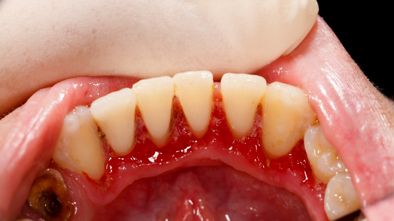 Gum disease is recognized as a cancer risk factor by many major health organizations worldwide.