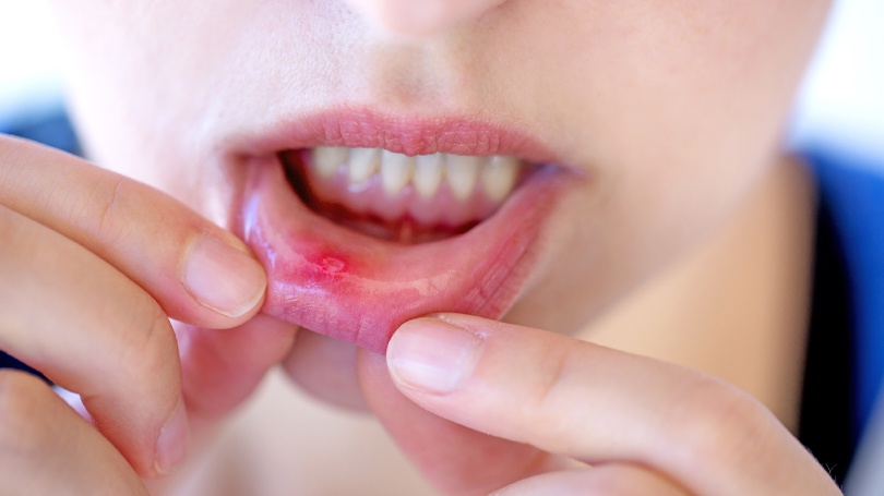 Cold sores and canker sores are often curable with natural remedies commonly found in the home.