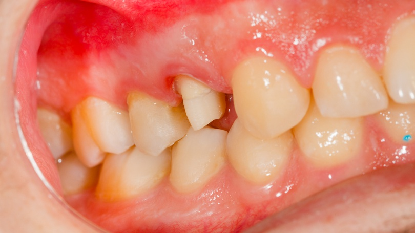 The mouth is the window to the body because oral health issues often indicate overall health problems.