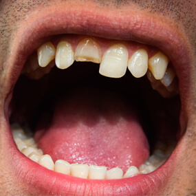 Take these immediate steps in response to dental damage.