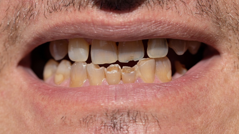 Streptococcus mutans is a bacterium and the most significant contributor to tooth decay in the human mouth.