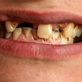 Gum disease and tooth decay are HPV infection risk factors.