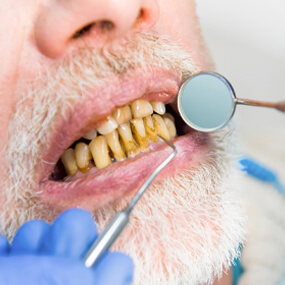 Learn what causes tooth decay, how to avoid it and what you can do about it.