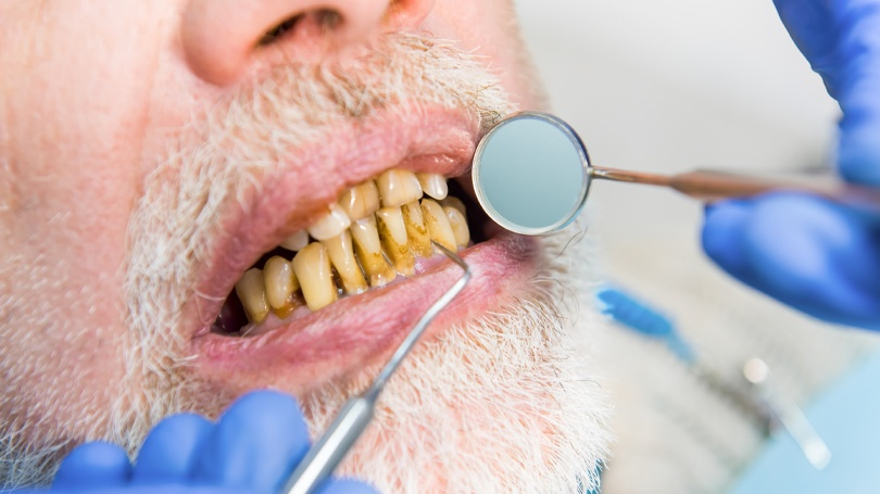 A guide to the causes of tooth decay, the associated symptoms, and the available treatments.