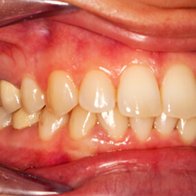 Early-stage gum disease can often be reversed with natural remedies.