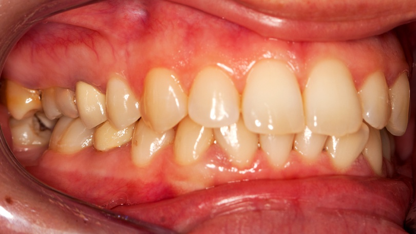 Gingivitis is the earliest stage of gum disease, and you may be able to reverse it with these home remedies.