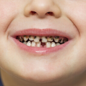 Many kids have cavities, but these can be avoided with good brushing and flossing habits.