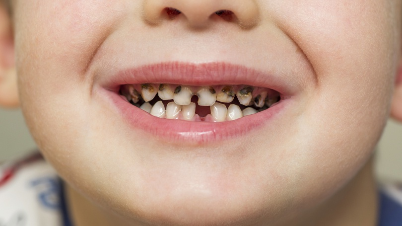 Cavities are a prevalent problem among children but also completely avoidable by establishing good oral hygiene habits.