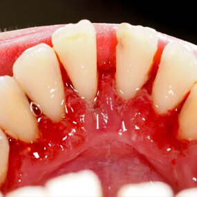 Gum disease is reversible if diagnosed in the early phases.