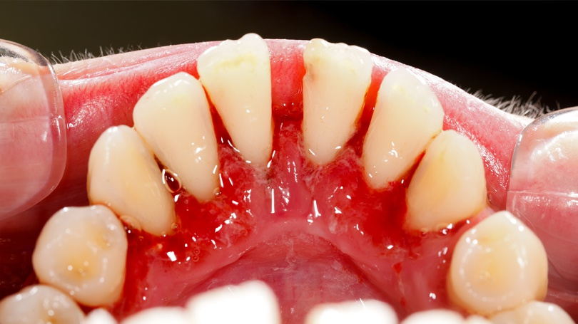 Receding gums is often a symptom of gum disease and is reversible if caught early enough.