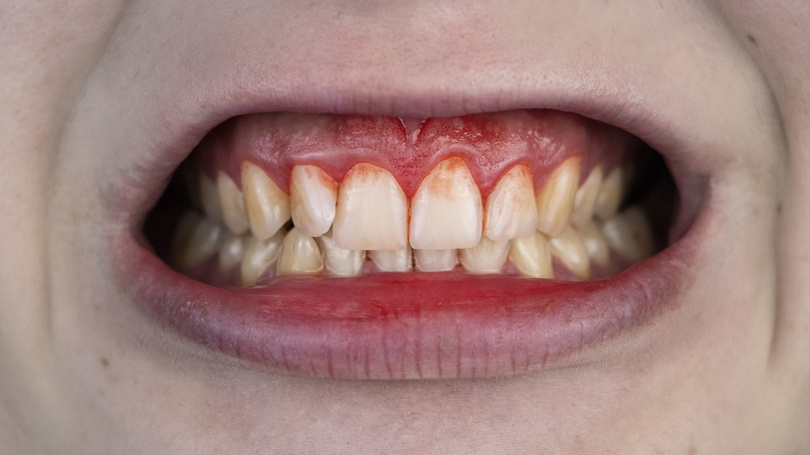 Gum disease is a serious infection of the gums that is preventable and can even be reversed if caught in the early stages.