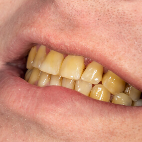 Teeth can discolor due to age, diet, smoking and other factors.