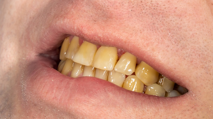 Your teeth can discolor for a variety of reasons that can be avoided and even reversed.